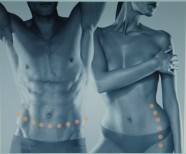 Hypoxi - design your body. Foto: PR